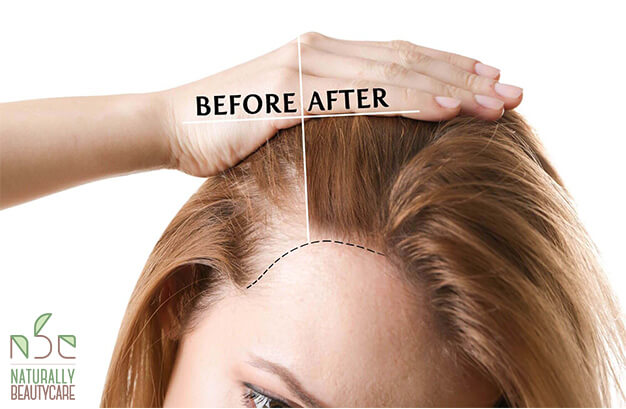 Hair-Loss-treatments